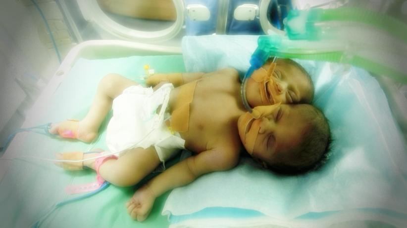 W Palestynie przyszły na świat bliźniaczki syjamskie zrośnięte sercem