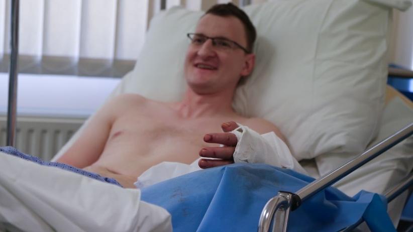Pacjent po pierwszej na świecie transplantacji dłoni zgina już kciukiem!
